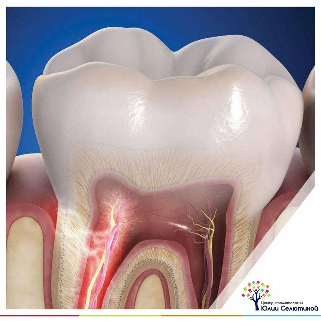 Чувствительность зубов при беременности