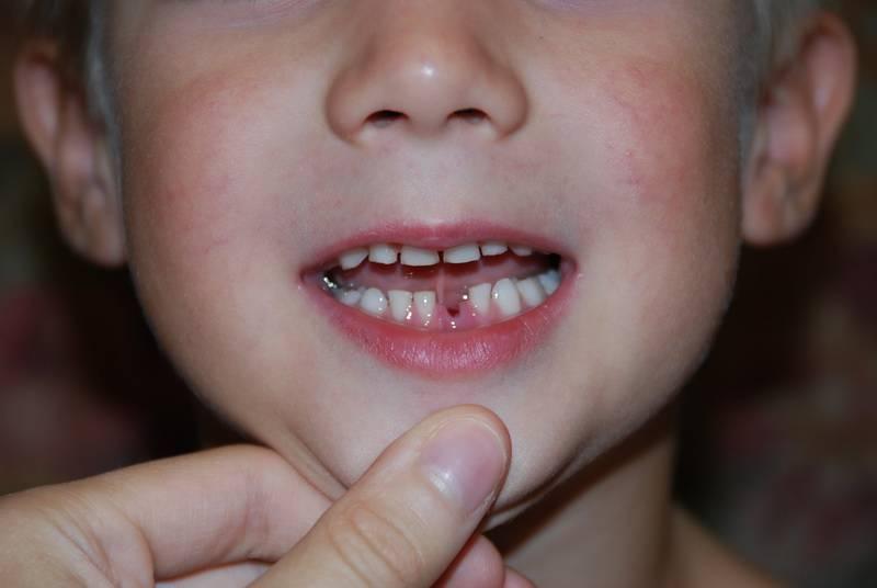 Когда у детей начинают выпадать зубы