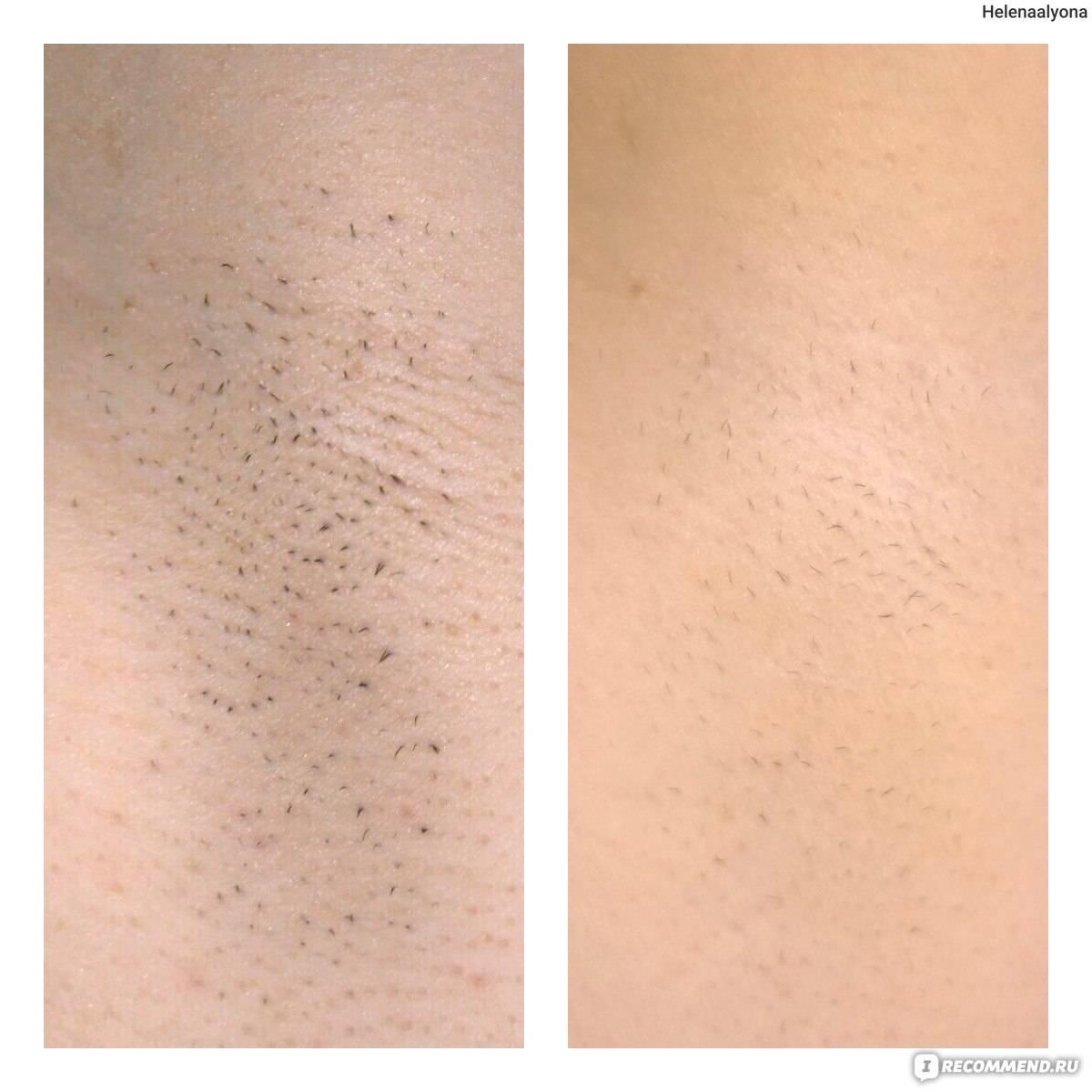 Все, что нужно знать о лазерной эпиляции глубокого бикини, а также отзывы о современной процедуре удаления волос