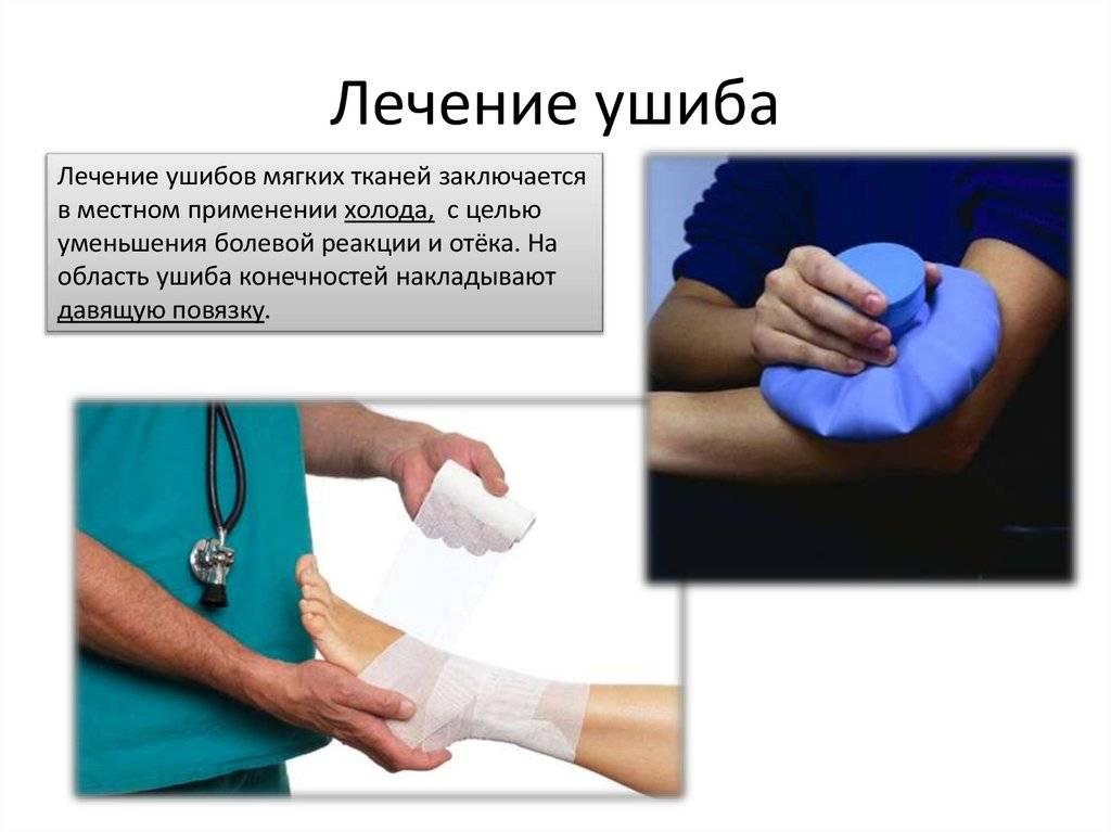 Способы лечения гематомы на ноге после ушиба