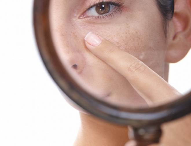 Уход за пористой кожей лица, косметические средства