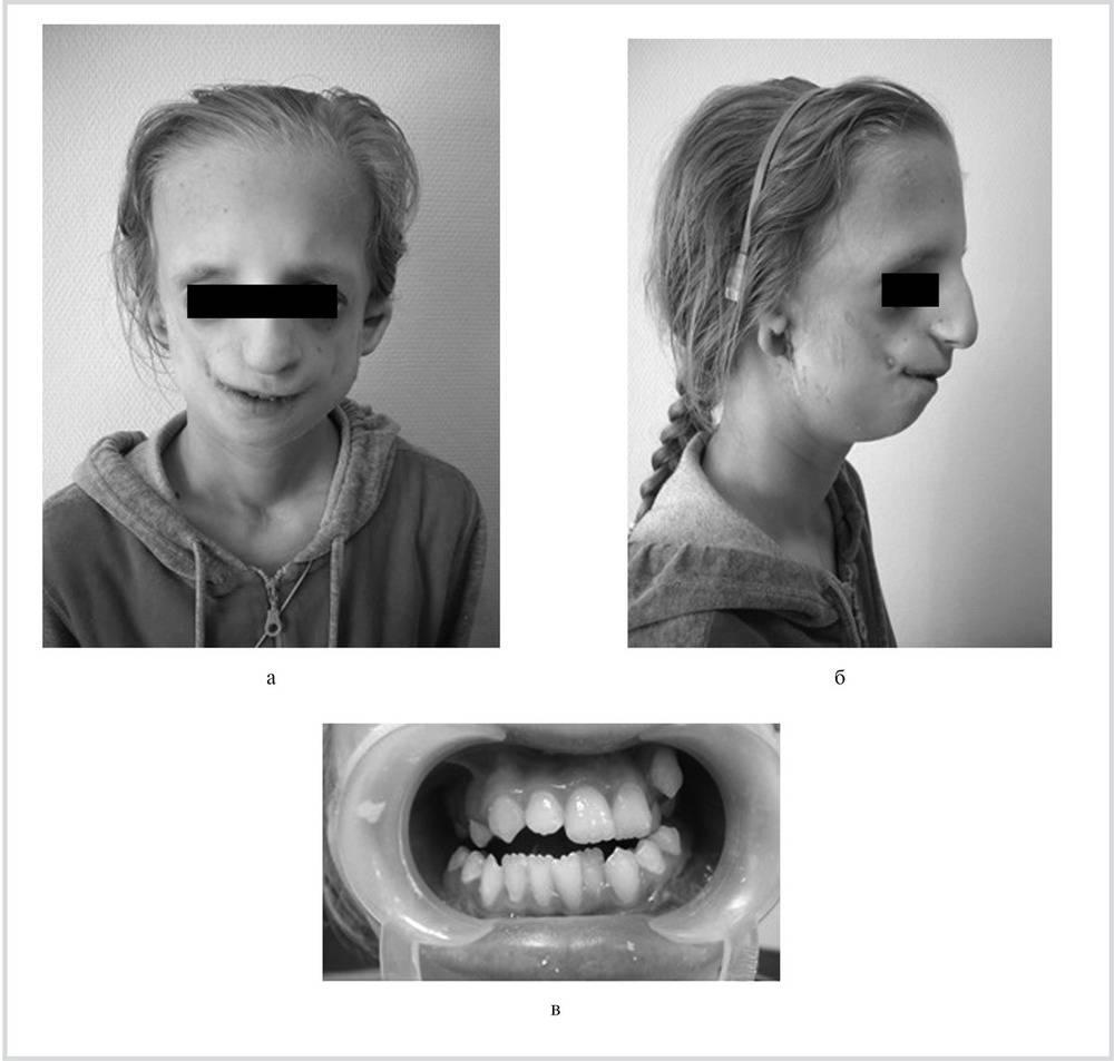 Об эффективности аппарата марко росса при расширении верхней челюсти