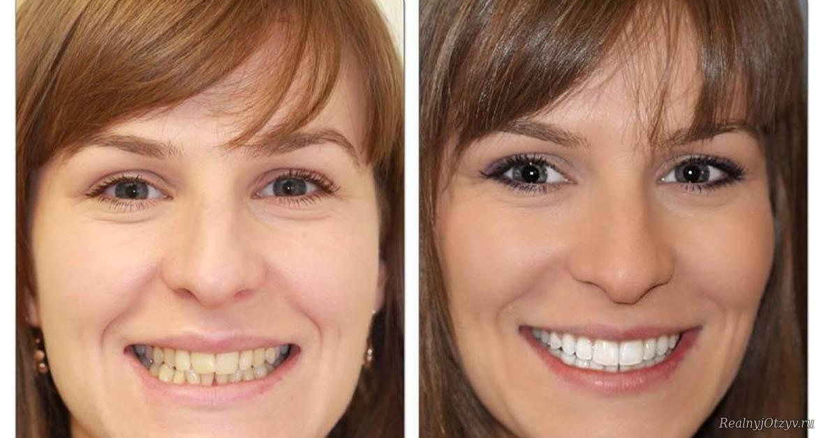 Виниры на передние зубы — создание красивой улыбки