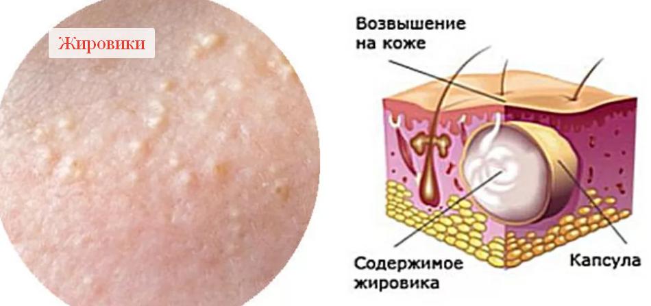 На что указывают твёрдые шишки под кожей?