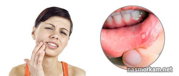 Может ли болеть горло из-за зуба