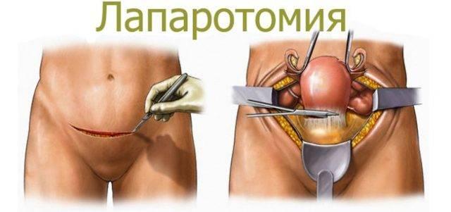 Какие бывают операции по удалению миомы матки. как проходят и как к ним готовиться?