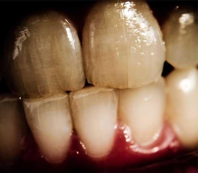 Как выглядят тетрациклиновые зубы на фото