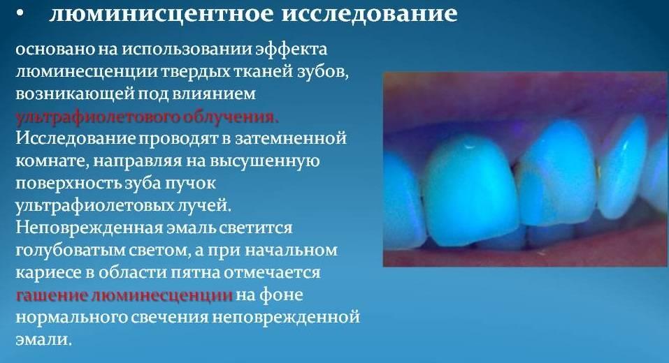 Диагностика кариеса зубов: современные методы