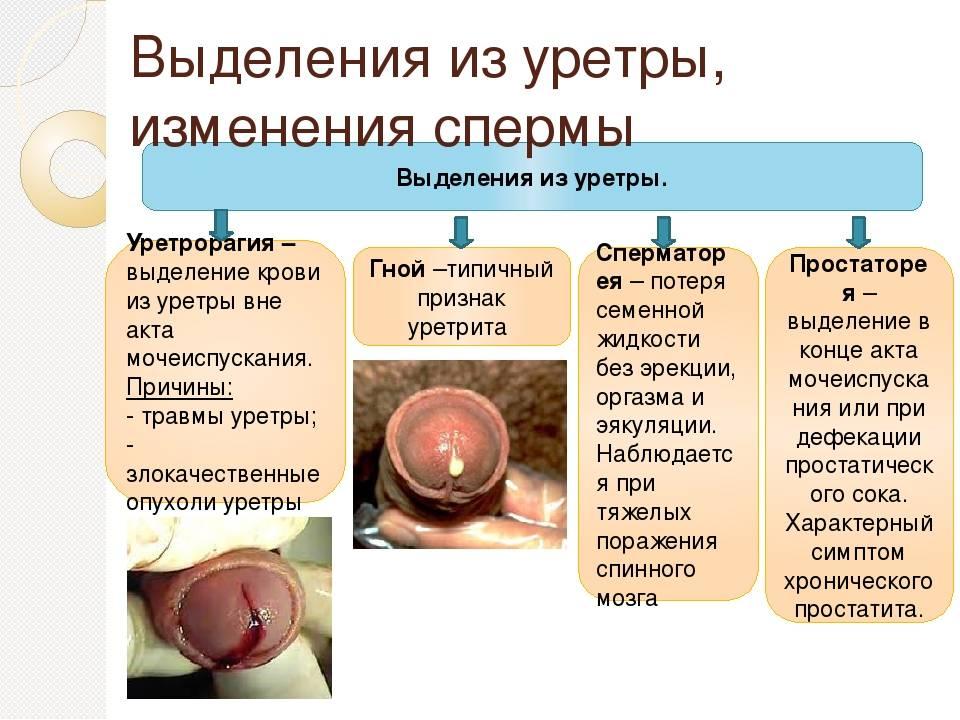 выделение крови при простатите