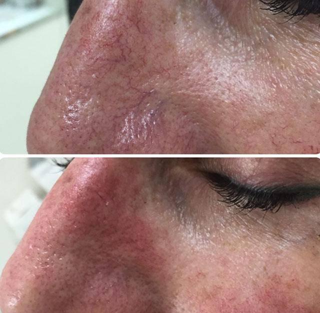 Лазерная коагуляция сосудов на лице