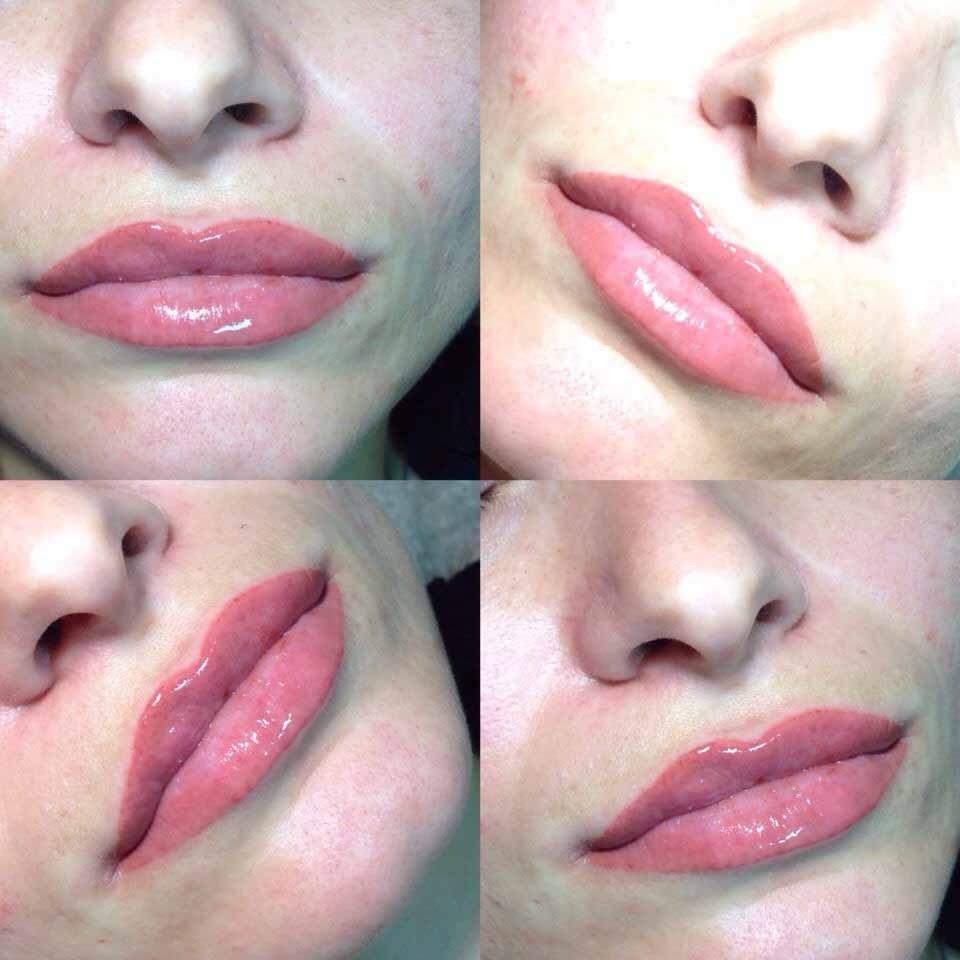 фото светлый кайал губ фото до и после модульные