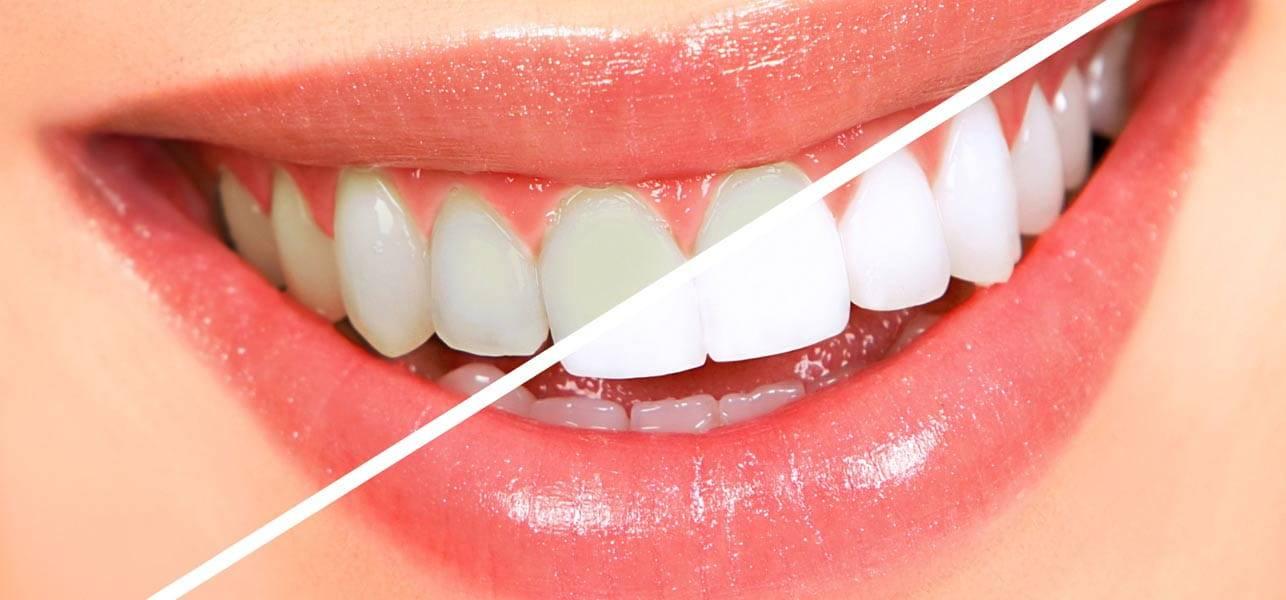 Можно ли отбеливать зубы во время беременности полосками и другими способами?