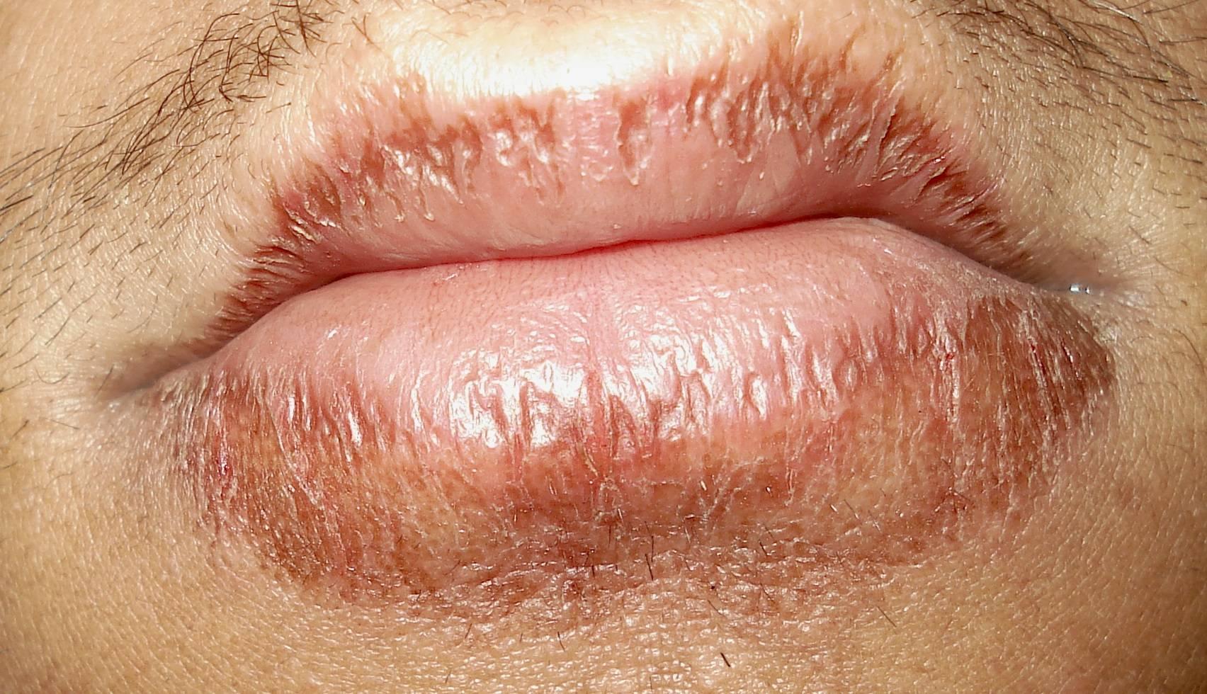 Сухие губы у ребенка: причины, способы лечения