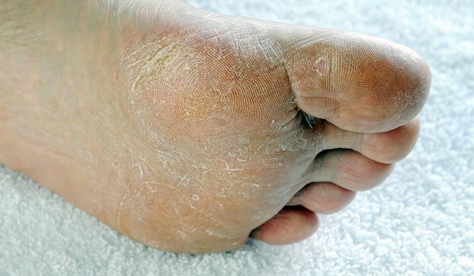 Шелушение кожи на ступнях ног: фото, причины, лечение