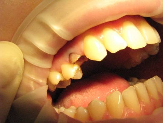 Передний зуб сломался под корень что делать. что делать если мертвый зуб сломался под корень