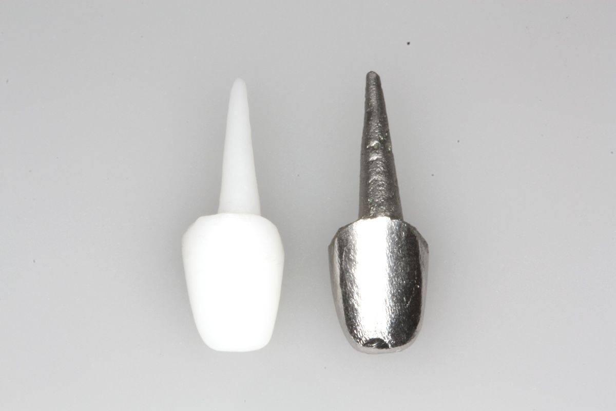 Вкладки на зубы под коронку