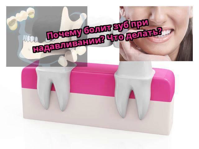 После лечения периодонтита болит зуб при надавливании