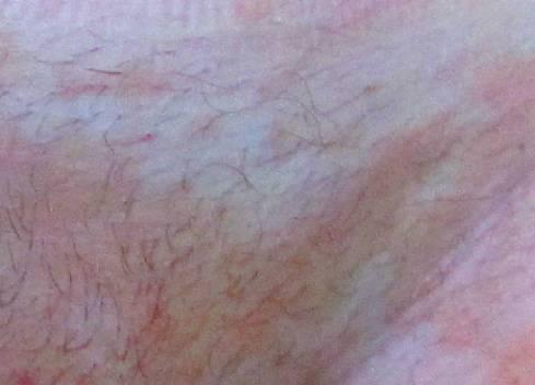 Аллергия в области гениталий у представительниц прекрасного пола: симптомы, лечение и меры профилактики