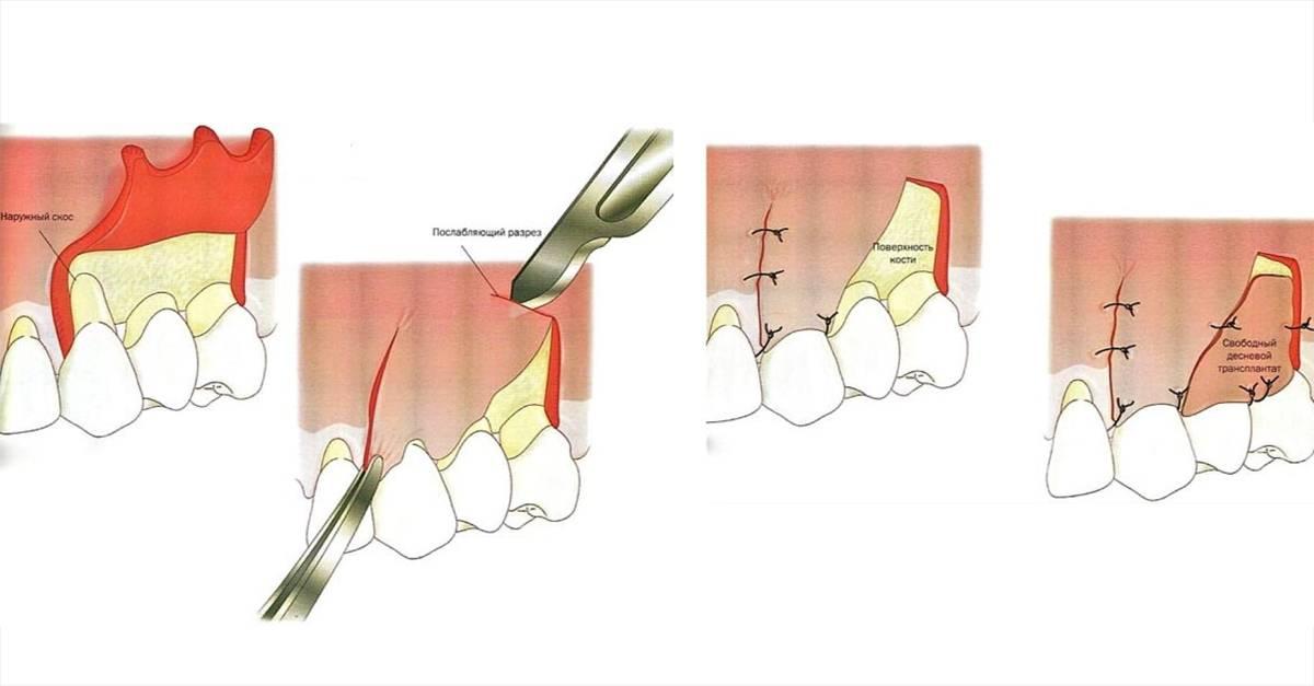 Гнойник или нарыв в десне с гноем: фото и лечение пародонтального абсцесса