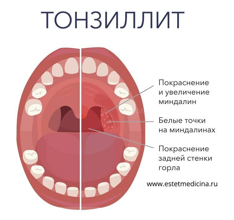 Желтый налет в горле: главные причины