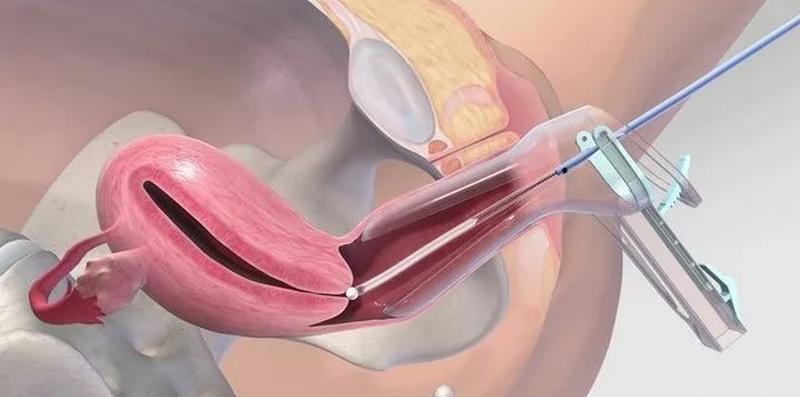Отличия пайпель- и цуг-биопсии эндометрия: что это такое, что показывает исследование, как проходит взятие материала?