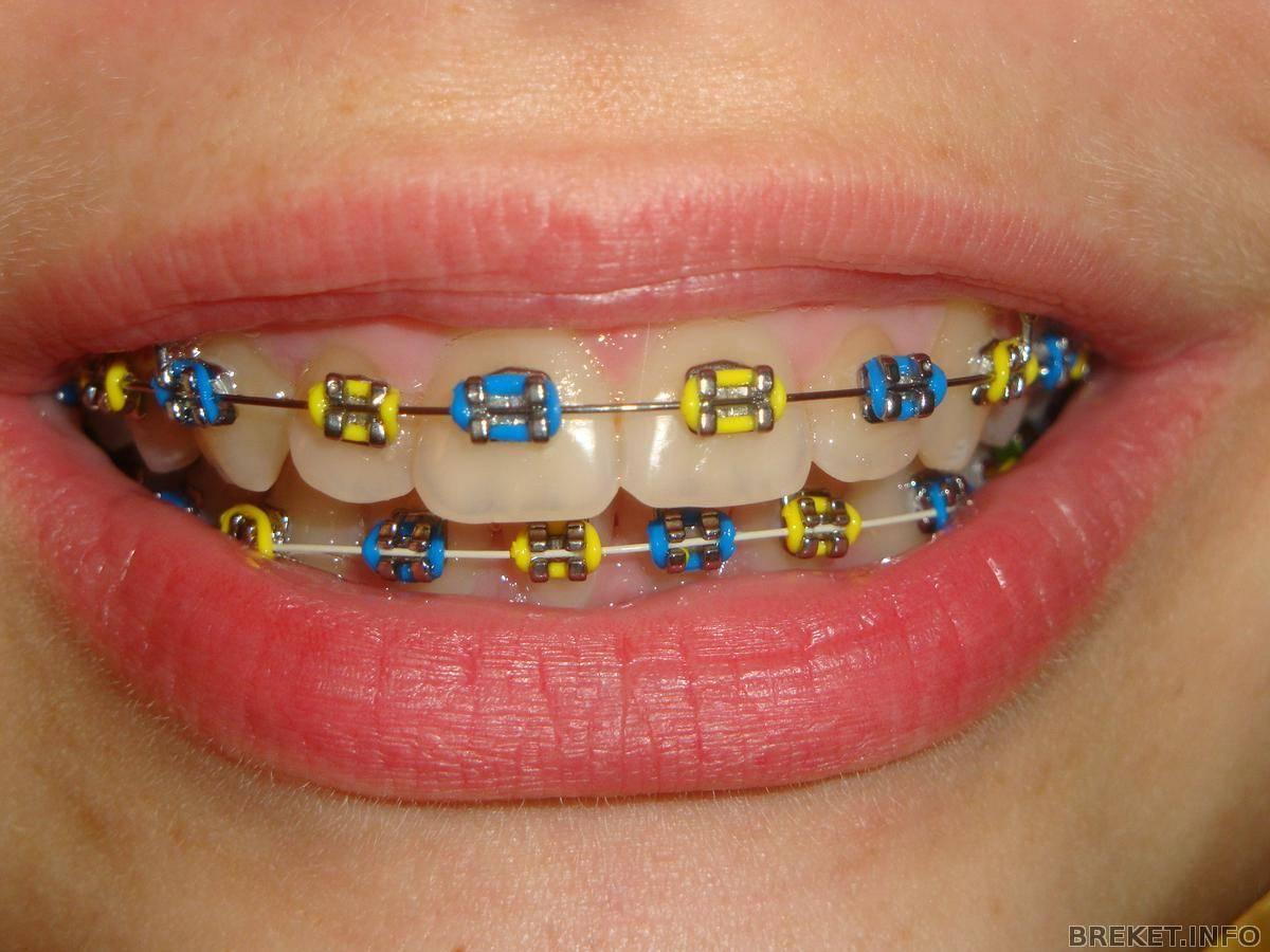 Цветные брекеты – исправление прикуса у детей