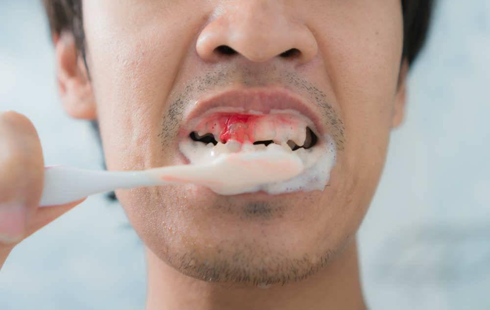 Почему кровоточат десны и есть неприятный запах изо рта: причины и лечение
