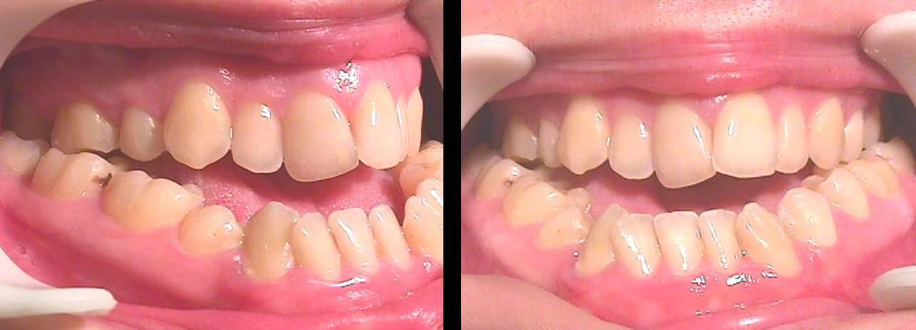 Аномалии развития зубов: макродентия и микродентия
