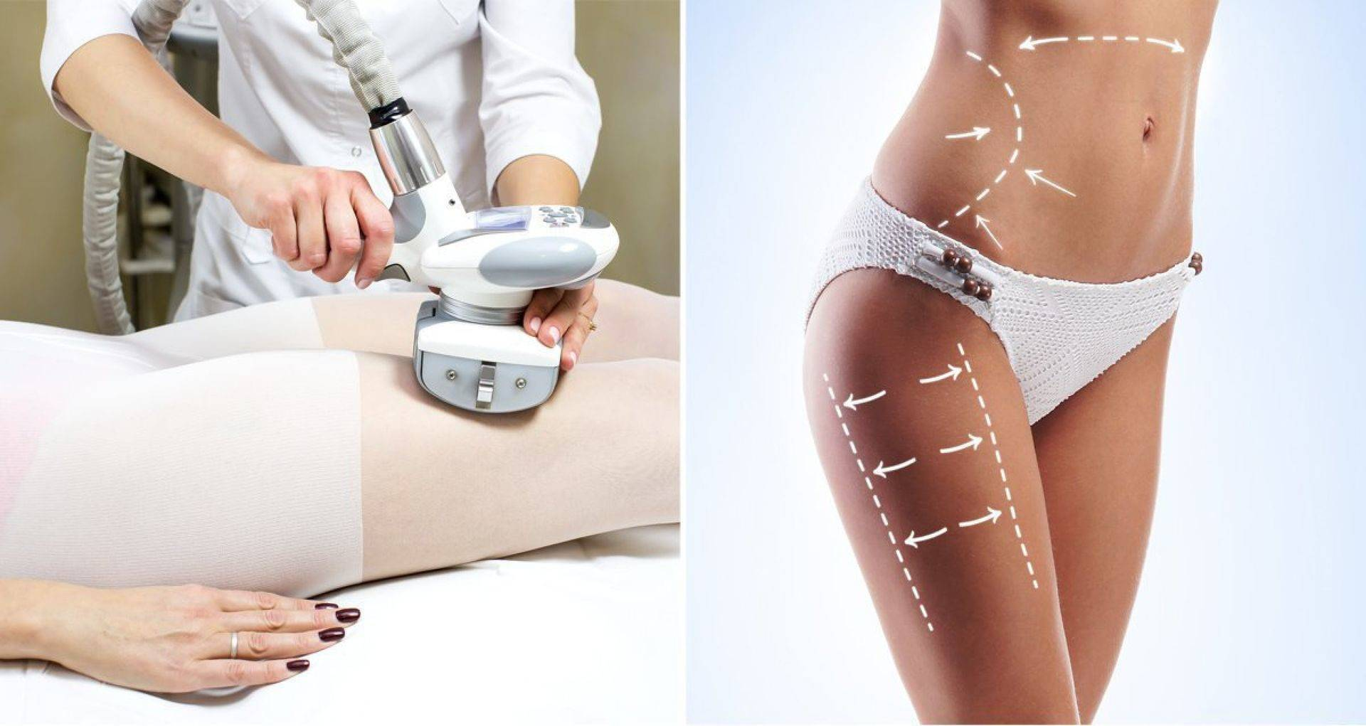 Секреты про антицеллюлитный массаж и технику выполнения