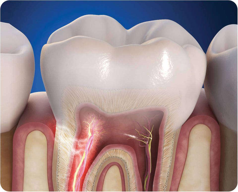 Чувствительность зубов после лечения глубокого кариеса