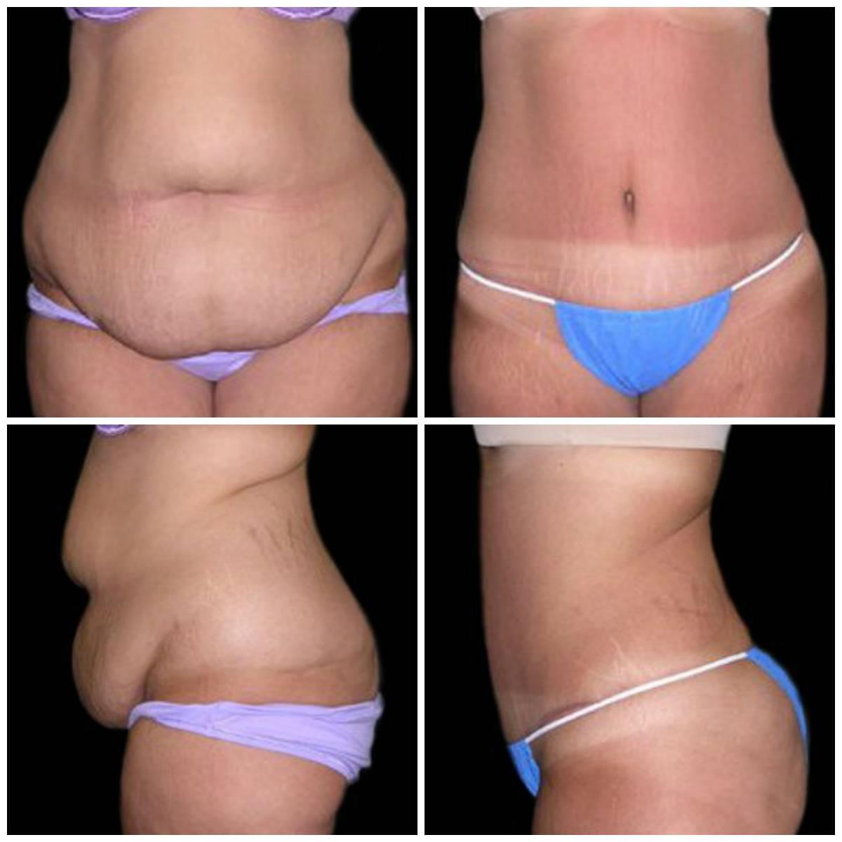 Уколы для похудения липолитики. можно ли похудеть с помощью липолитиков (липотерапии)?