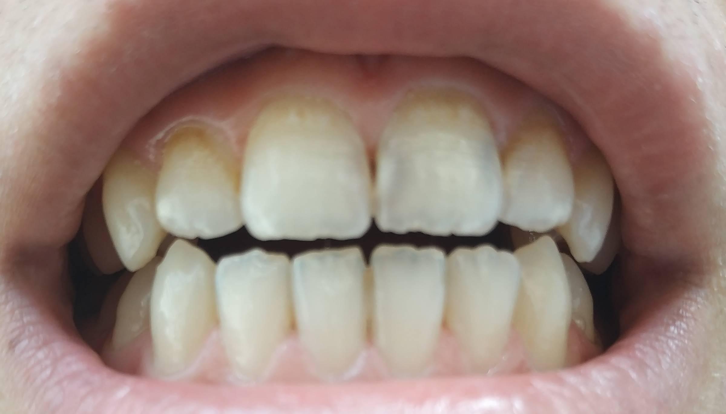 Лечение кариеса — как лечат заболевание в стоматологии?