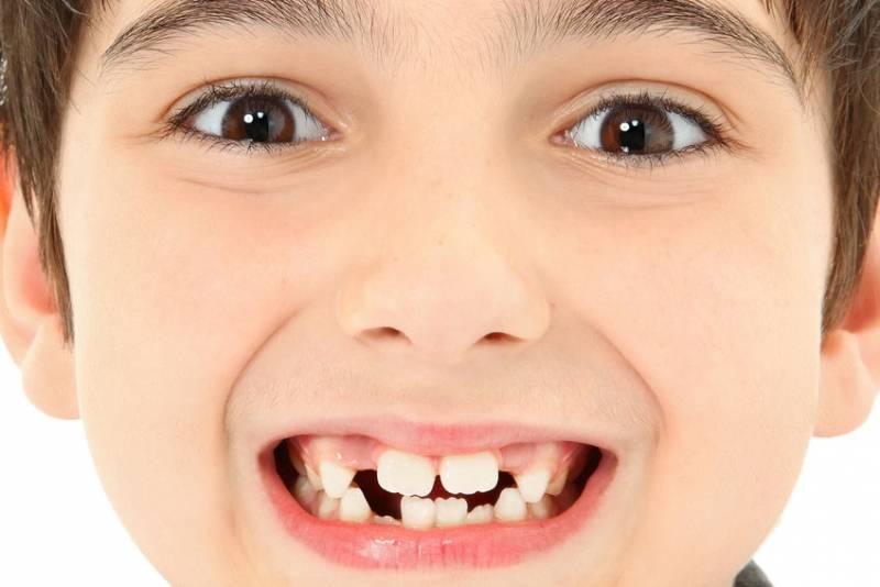 Как растут верхние зубы у младенцев — очередность