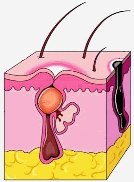 Абсцесс малой половой губы