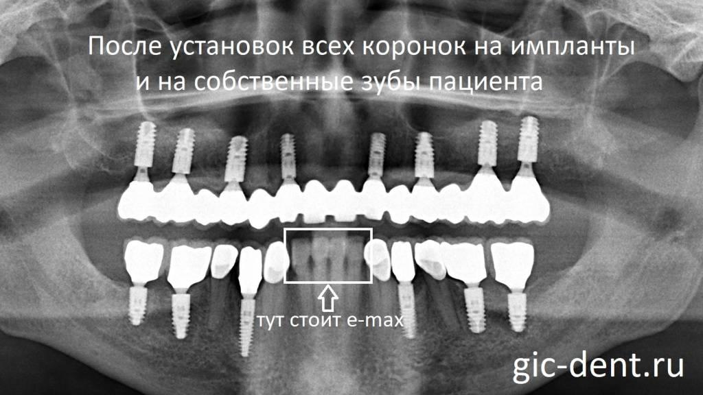 Имплантация зубов при сахарном диабете 1 и 2 типа