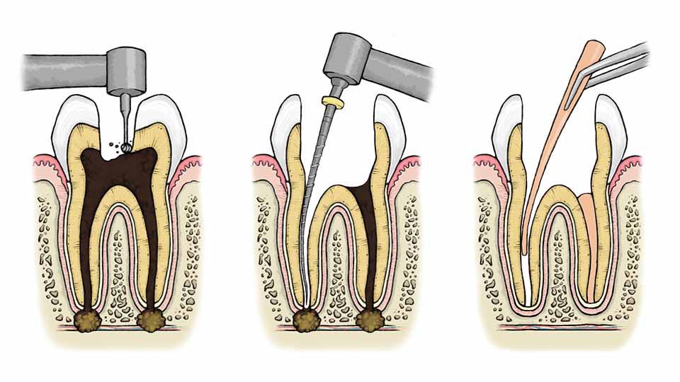 Почему после операции по удалению нерва и пломбирования и чистки каналов болит зуб, что делать, как унять боль?
