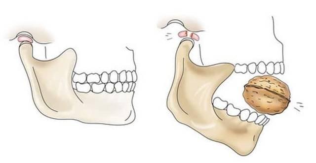 Стопы и челюсть: взаимосвязь