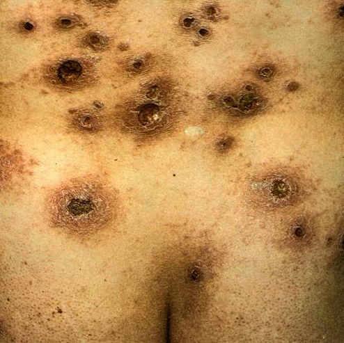 Как выглядит сифилитическая сыпь