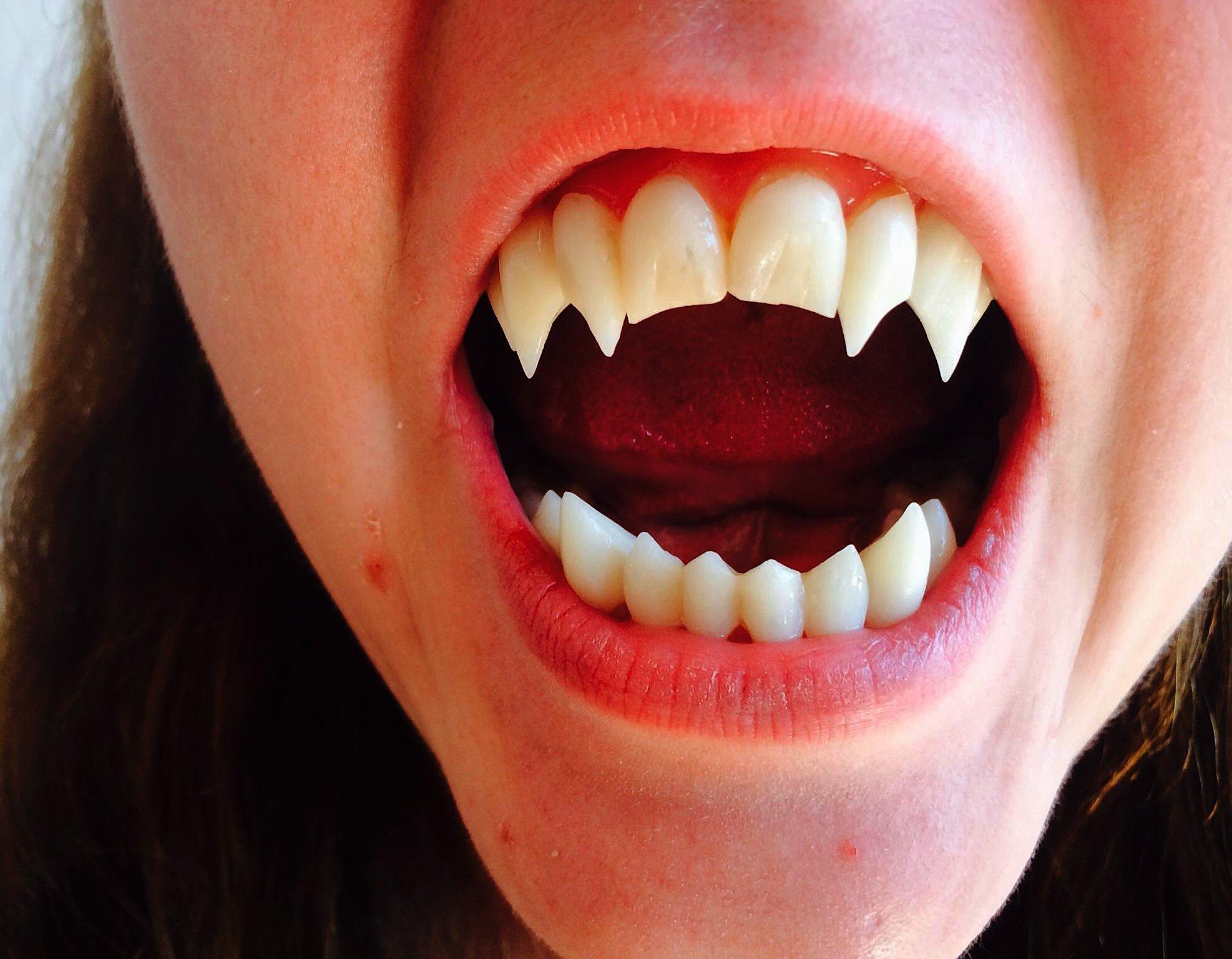 Особености удаления дистопированных зубов