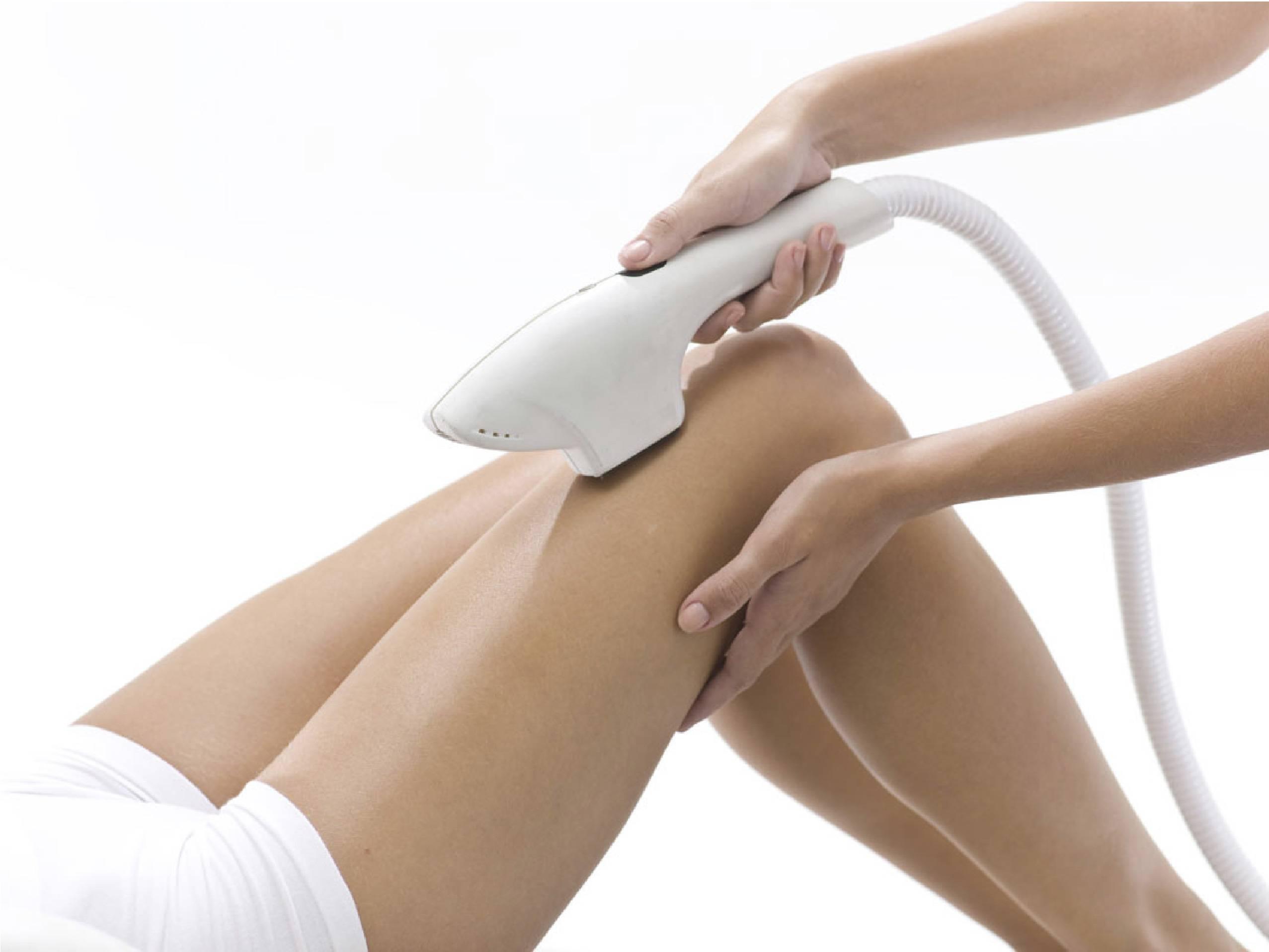 Борьба за гладкость кожи: фотоэпиляция или лазерная эпиляция — что лучше выбрать