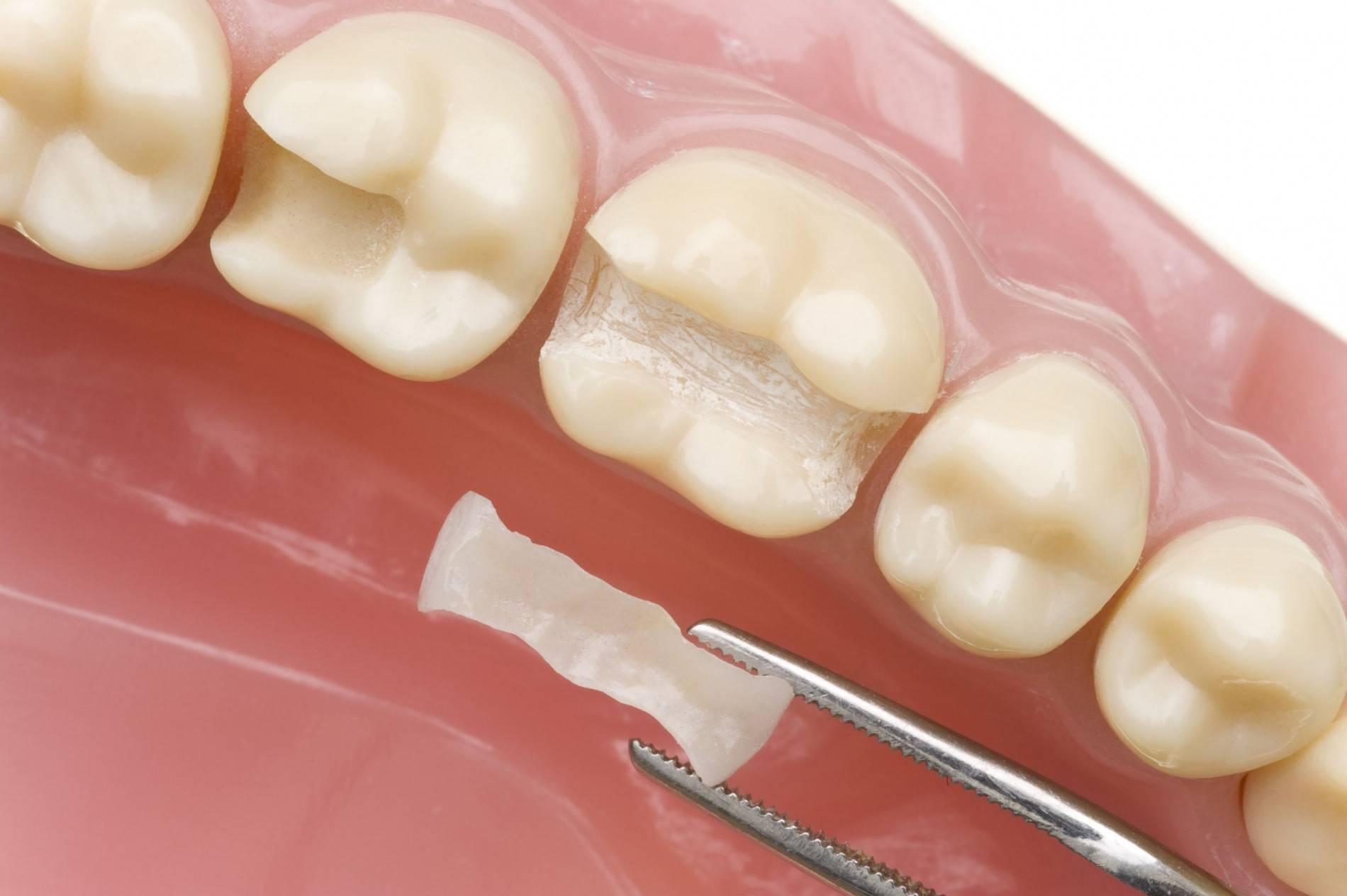 Оправдано ли применение микропротезов для восстановления и замены зубов
