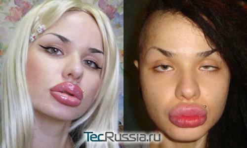 Кристина рэй и ее самые большие в мире губы – фото до и после пластических операций