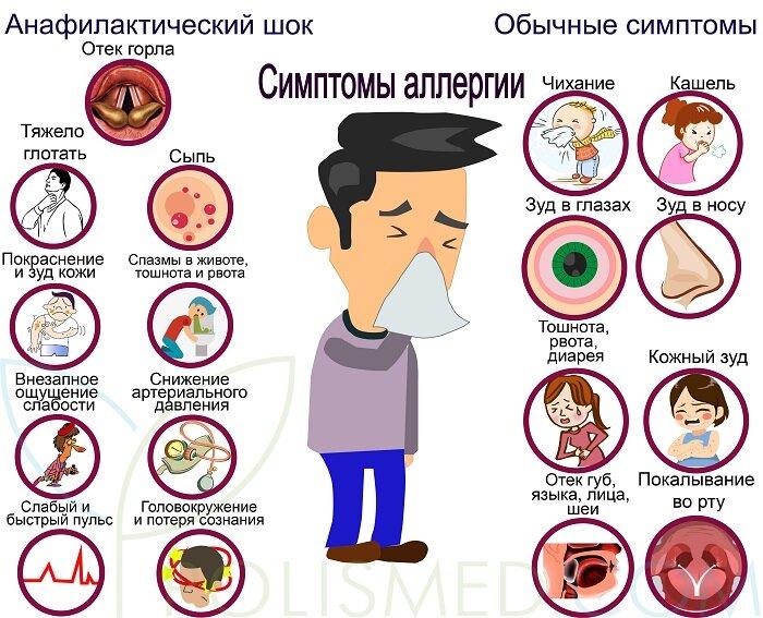 Отек языка. причины и лечение