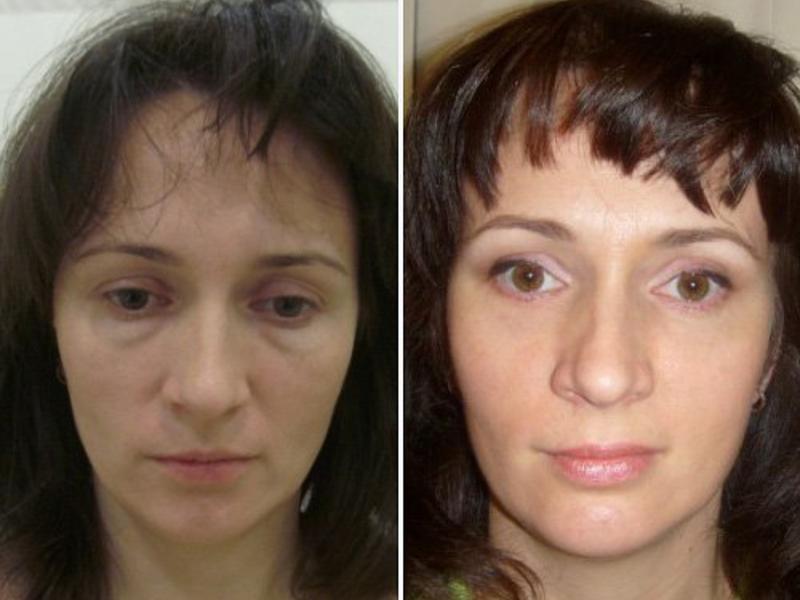 Восстановление после блефаропластики по дням