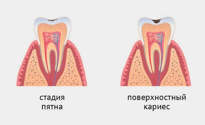 Кариес – лечение и профилактика. кариес молочных зубов. причины, симптомы и диагностика кариеса.