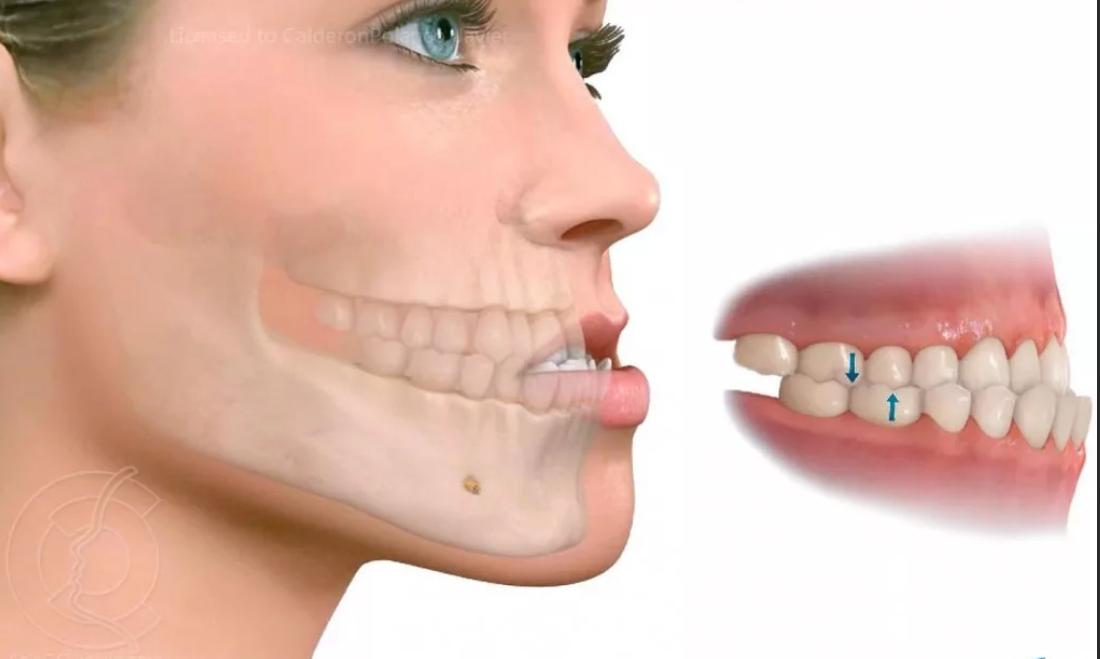Аномалия зубов исправима: врач, который ставит брекеты - как он называется?