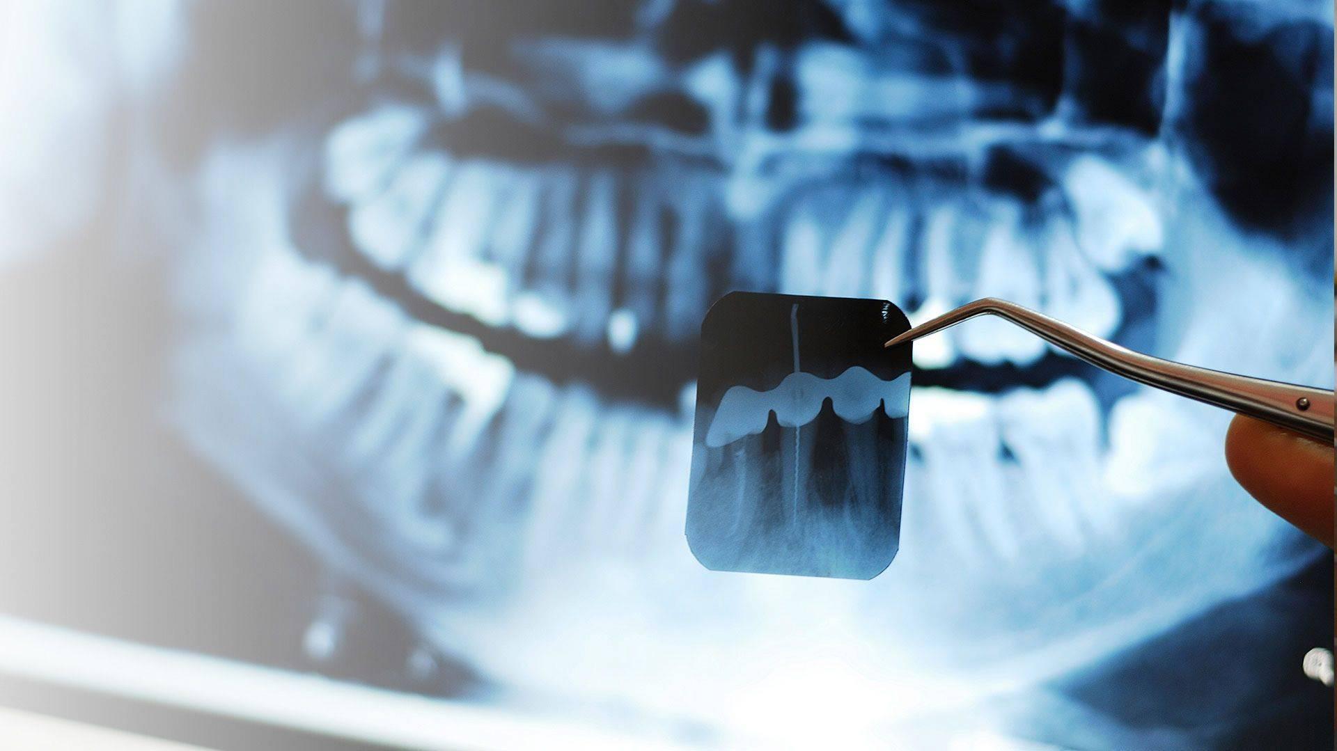 В каких случаях показан рентген зуба