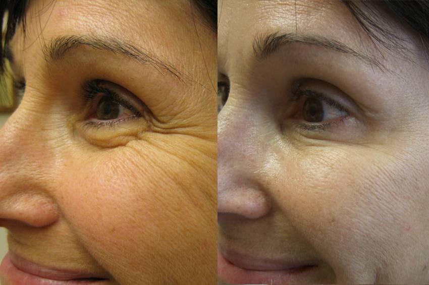 Что нельзя делать после биоревитализации — советы косметологов