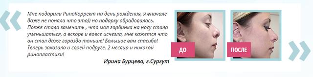Ринокорректор для носа: отзывы, описание, характеристики и инструкция