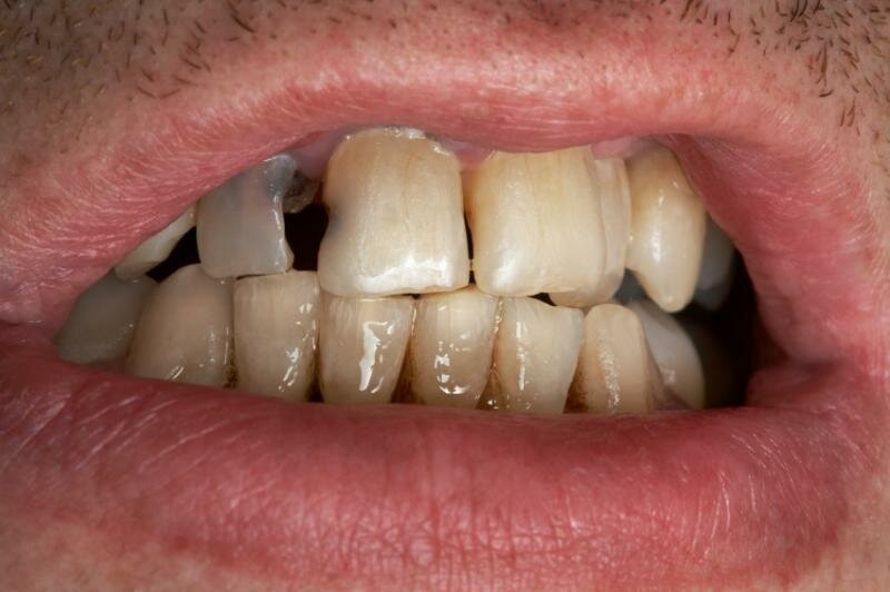 Гнилые зубы: все последствия для организма